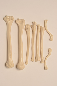 Left and right upper arm, radius, ulna and clavicle